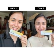 Holo Holo Teeth Whitening Kit Review