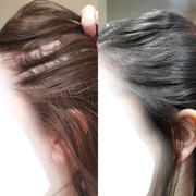 iRestore Hair Growth System iRestore Professional Review