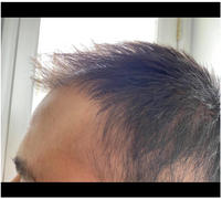 iRestore Hair Growth System iRestore Essential Review