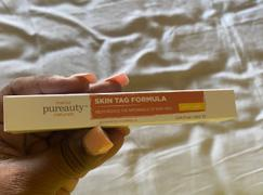 Pureauty Naturals Skin Tag Formula Review