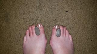 Dr. Frederick's Original Dr. Frederick's Original Gel Toe Separators - 6 Pieces -- for Bunions and Overlapping Toes Review