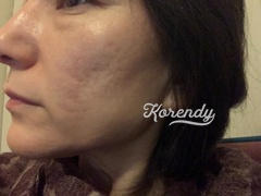 Korendy Rovectin - Clean LHA Blemish Ampoule 15ml Review