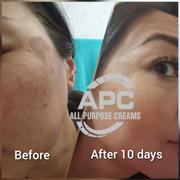All Purpose Creams APC All Purpose 5% Cysteamine Review