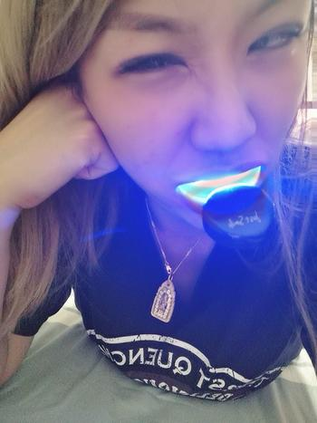 Just Smile Singapore Just Smile Premium Teeth Whitening Kit Review