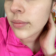 aprilskin.us Blemish Off SET Review