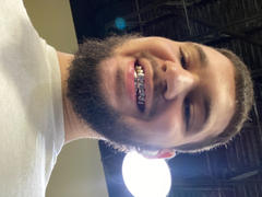Dayyani Jewelers Custom 8 on 8 Gold Grillz Review