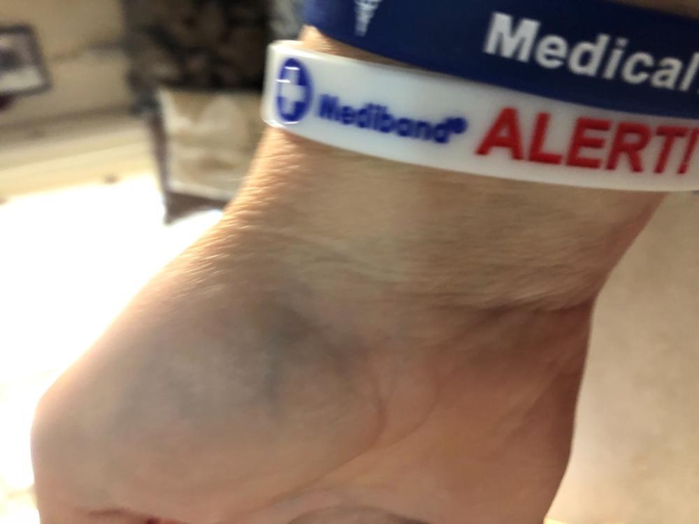 Medical Alert Ankle Bracelet
