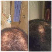 BlackHairandSkinCare.com African Black Soap Hair Growth Shampoo Review
