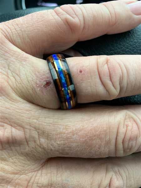 HappyLaulea Black Tungsten with Gold Strip Ring with Blue Opal & Hawaiian Koa Wood Tri-Inlay - 8mm, Dome Shape, Comfort Fitment Review