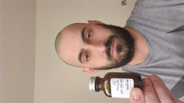 Goran Ratkovic verified customer review of The Legend Beard Oil