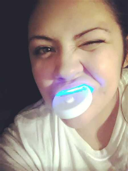 Alicia Mondloch verified customer review of BrightWhite Smile Teeth Whitening Kit