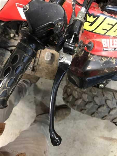 Ryan Hammit verified customer review of Brake Lever - Right - 160mm - With Parking E-Brake - Version 3