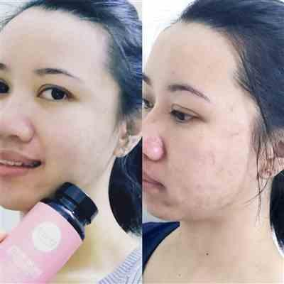 Christine C. verified customer review of Clear Skin